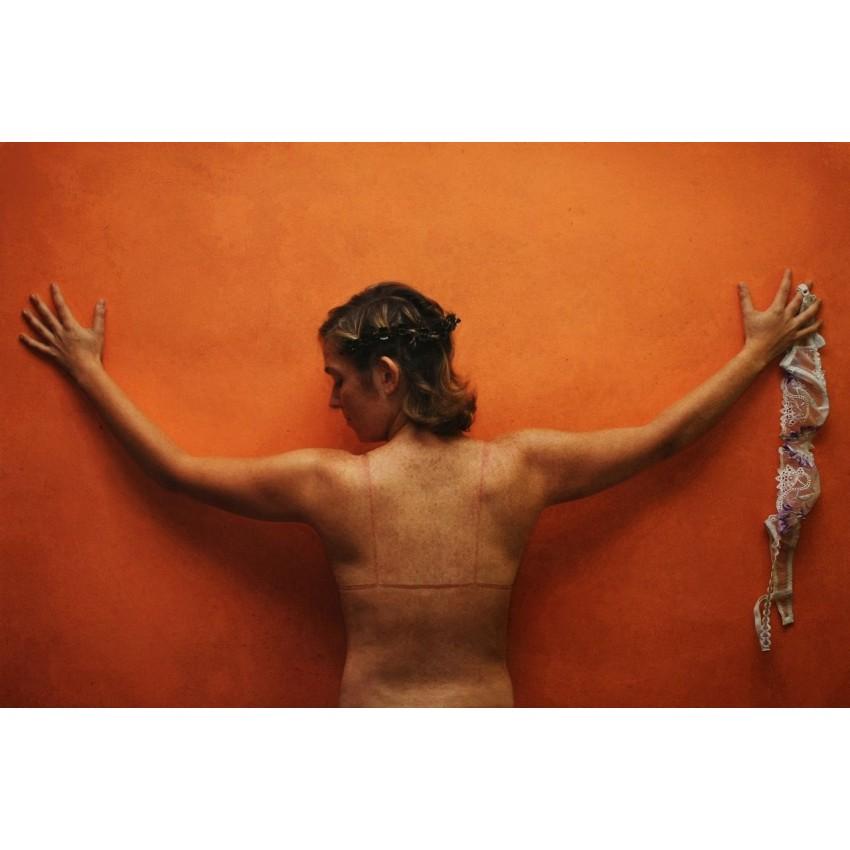 Irving S. T. Garp - Les Stigmates de la Beauté